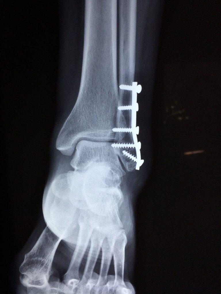 cheville après fracture